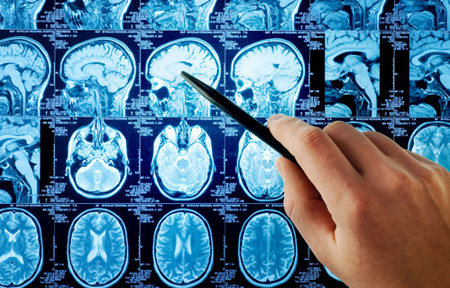 Киста гипофиза головного мозга