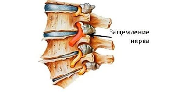 Защемление нерва в шейном отделе позвоночника и его лечение