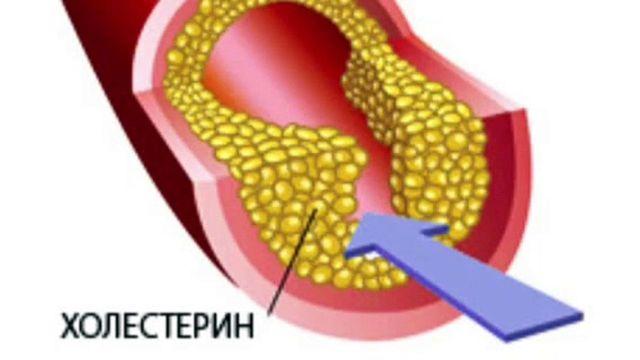 Забиты сосуды головного мозга: способы избавления от бляшек