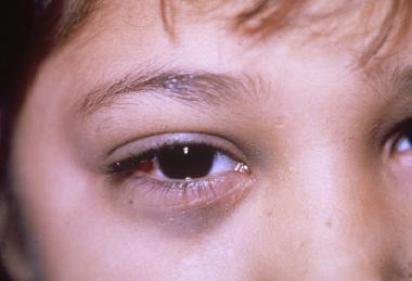 Нейробластома у детей: злокачественная опухоль СНС