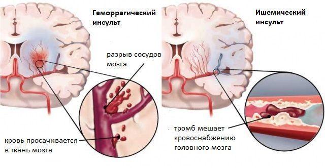 Инсульт на ногах: симптомы микроинсульта и его последствия