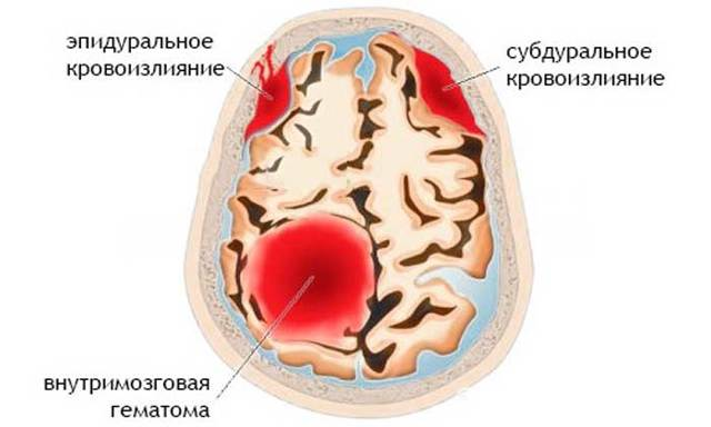 Кровоизлияние в мозг: причины, симптомы, последствия