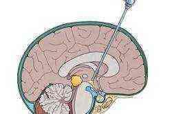 Операции на головном мозге взрослого человека и детей