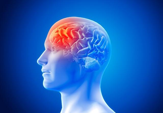 Инсульт в бассейне средней мозговой артерии: виды нарушений