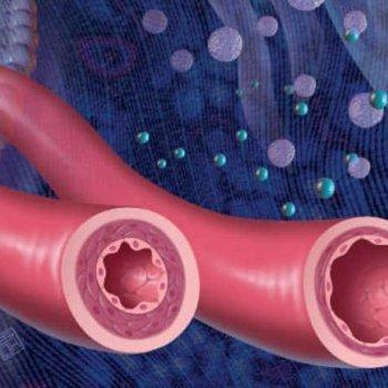Плохие сосуды: причины и симптомы проблем с артериями и венами