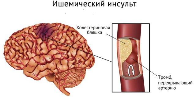 Обширный инсульт мозга: виды, распознание, первая помощь